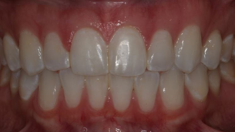 Dr. Tomaro Las Vegas Six Month Smiles Dentist After