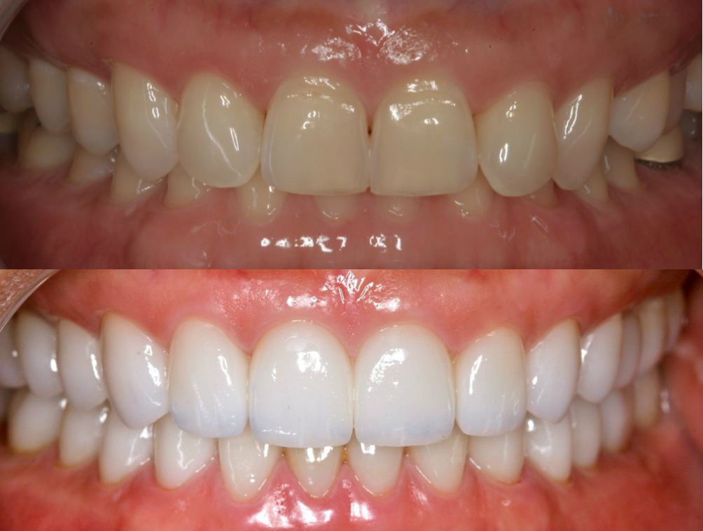 Dr. Tomaro Las Vegas Full Mouth Reconstruction